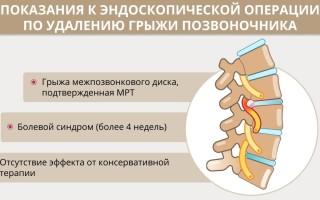 Грыжи позвоночника: техника и показания к эндоскопическому удалению
