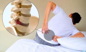 Могут ли грыжи позвоночника пройти сами: как избавиться от боли?