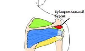 Основные симптомы и современные методы лечения бурсита голеностопного сустава