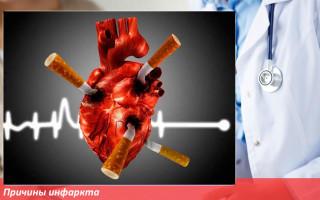 Что такое инфаркт сердца