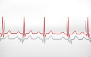Как поднять пульс не поднимая давления