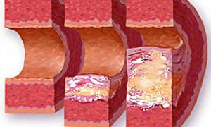 Что такое уплотнение аорты
