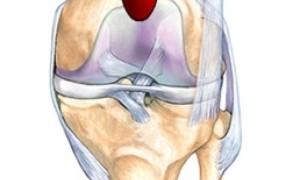 Особенности супрапателлярного бурсита в коленном суставе, симптомы и лечение
