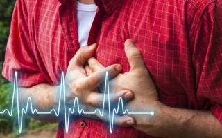 Перебои в сердце причины как лечить