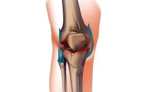 Лечение первичного генерализованного остеоартроза, симптоматика