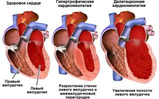 Колит в сердце что делать