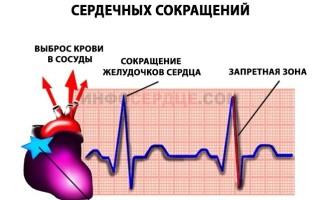 Синусоидный ритм сердца