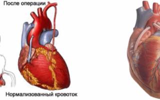 Что такое шунтирование сосудов сердца