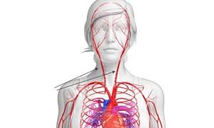 Сонная артерия болезни симптомы