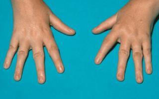 Симптомы, причины и самые эффективные методы лечения аллергического артрита у детей