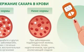 Как подготовиться к анализу крови на определение сахара с нагрузкой, показания к его проведению?