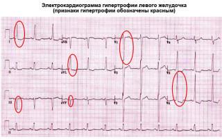 Желудочек сердца