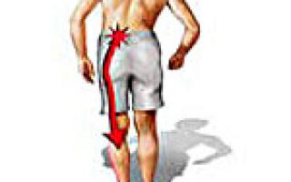 Основные причины вертеброгенной люмбоишиалгии, формы патологии, клиническая картина и лечение