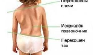 Формы и виды искривления позвоночника у детей, диагностика и методы лечения