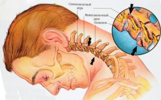 Можно ли получить инвалидность при диагнозе остеохондроз и каковы правила ее оформления