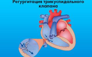 Регургитация трикуспидального клапана 1 степени: 2 и 3 степень