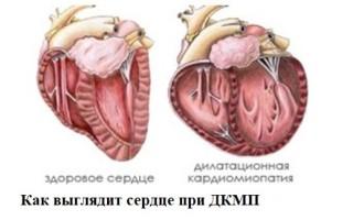 Дилатационная кардиомиопатия что это такое