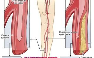 Вены болят на ногах симптомы