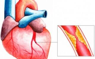 Симптомы при разных формах стенокардии, диагностика и тактика лечения