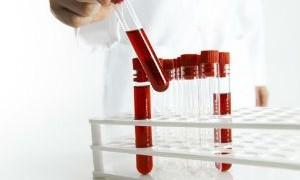 Понижение нейтрофилов в крови