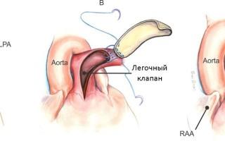 Стеноз легочной артерии (лечение, симптомы, диагностика)