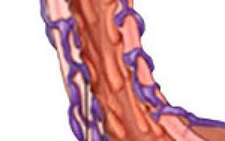 Варикозное расширение вен пищевода причины