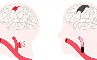 Причины инсульта в молодом возрасте у мужчин
