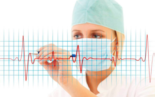 Особенности синусовой брадикардии сердца, диагностика и лечение