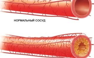 Причины атеросклероза сосудов