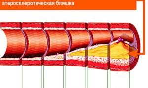 В чем и как измеряется артериальное давление?