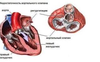 Клапан в сердце