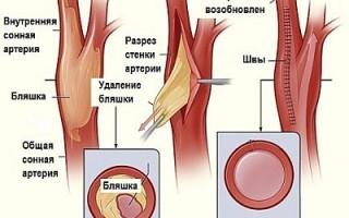 Нестенозирующий атеросклероз брахиоцефальных артерий лечение