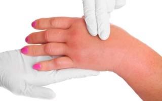 Гипертоническая болезнь 3 стадии 3 степени – симптомы и лечение