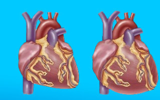 Причина смерти вторичная кардиомиопатия