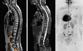 Симптомы, проявления и диагностика рака позвоночника, методы лечения