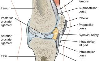 Особенности препателлярного бурсита коленного сустава, симптомы и лечение