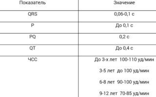 Как расшифровать ЭКГ