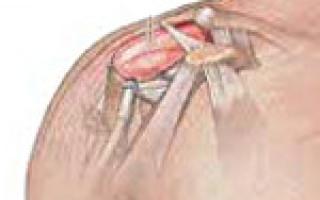 Симптомы и лечение бурсита плечевого сустава, диагностика патологии и методы профилактики