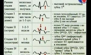 Церебральный инфаркт