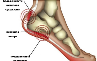Симптомы шпоры на пятке и эффективные методы ее лечения