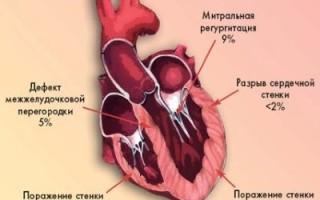Симптомы кардиогенного шока в постинфарктном состоянии