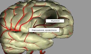 Хроническая ишемия мозга 1 степени