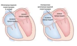 Что нужно знать об аневризме межпредсердной перегородки