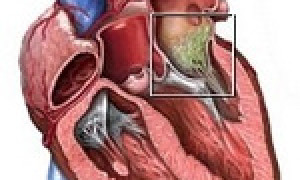 Характеристика септического эндокардита, разновидности и методы лечения