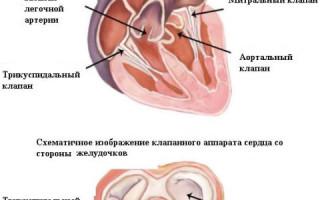 Стеноз митрального клапана симптомы