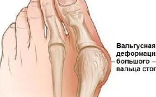 Почему развивается вальгусная деформация большого пальца стопы, лечение без операции – возможно ли
