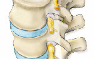 Симптомы, профилактика и лечение корешкового синдрома шейного отдела позвоночника