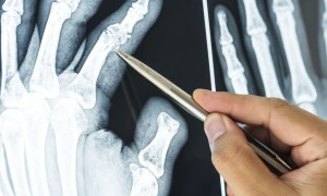 Причины ревматоидного артрита пальцев рук, первые симптомы болезни, правила организации комплексного лечения