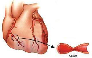 Вазоспастическая стенокардия что это такое