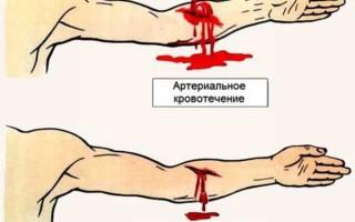 Какие обозначения имеют различные группы крови и резус-фактор в анализах, значение данных показателей